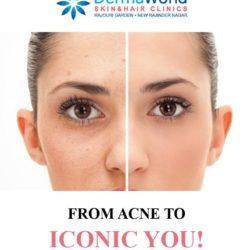 Acne Treatment in Delhi