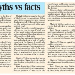 Myths Vs Facts about Vitiligo cleared by Dr. Rohit Batra, Dermatologist, Dermaworld Skin & Hair Clinics.