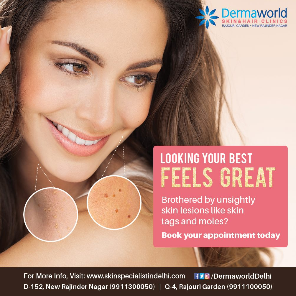 Get rid of skin tags, lesions and warts