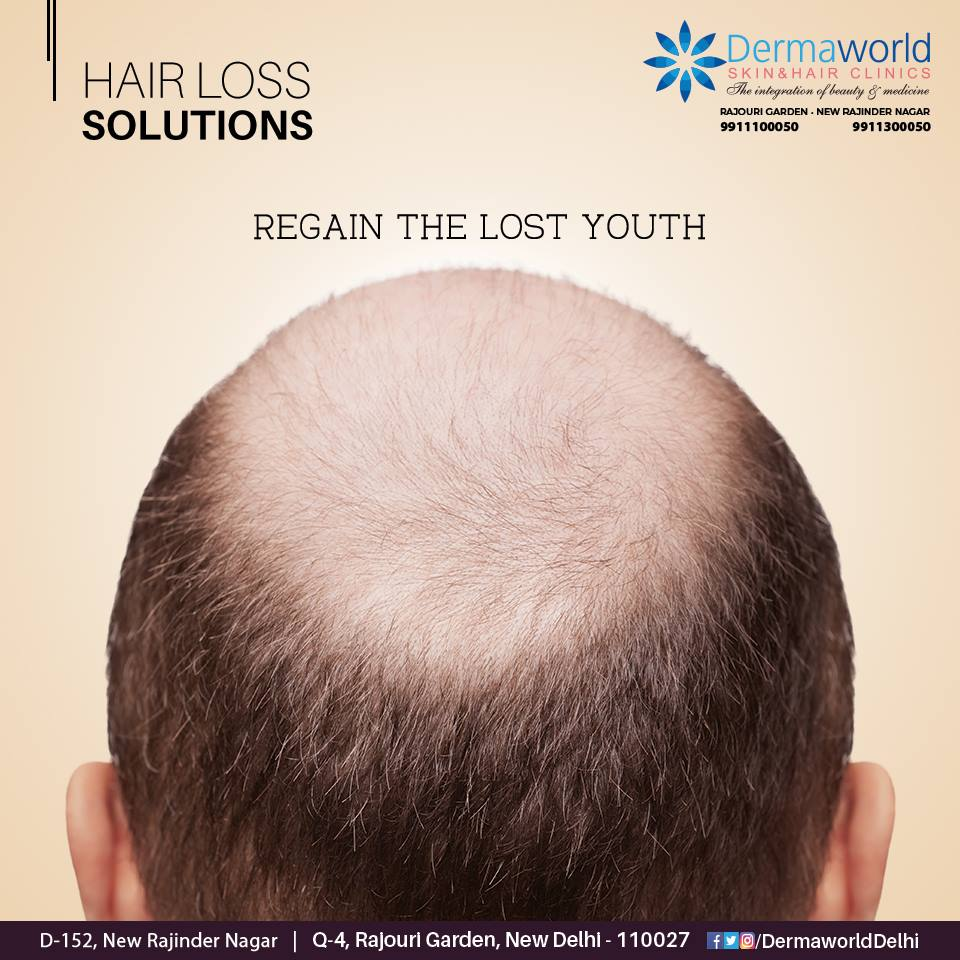 best hair clinic in Delhi ncr