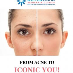 Best Skin specialist in Delhi for acne