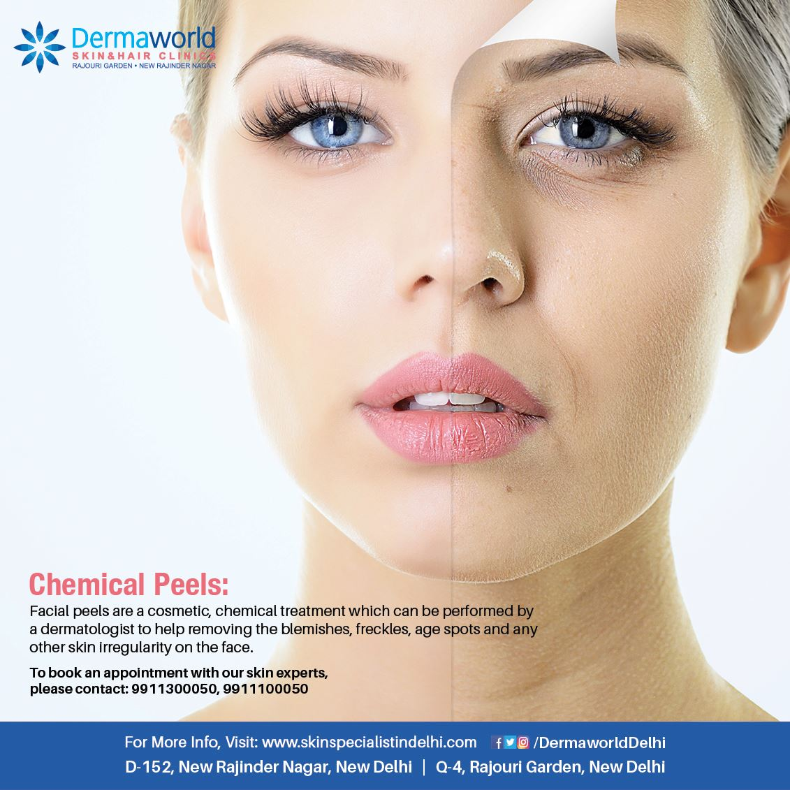 best skin clinic in west delhi
