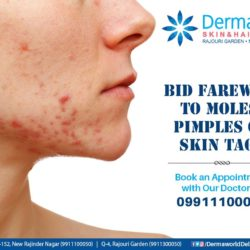 best pimple treatment in delhi