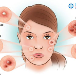 Acne: papules, pustules, cysts etc