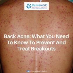 BACK ACNE - Causes and Cure