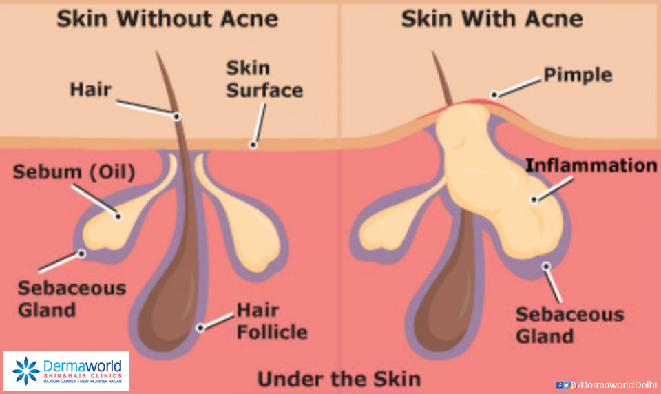 What causes Acne? Whats the difference in a normal Skin and a Skin with Acne?