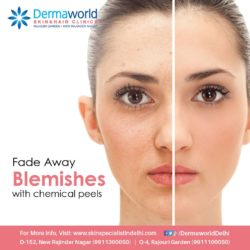 laser peels treatment