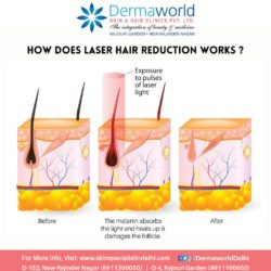 Laser hair reduction treatment