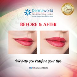 best dermatologist in west delhi