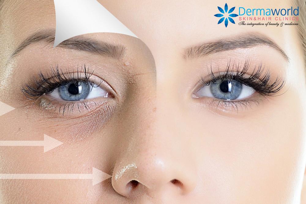 Use of derma fillers under dark eye