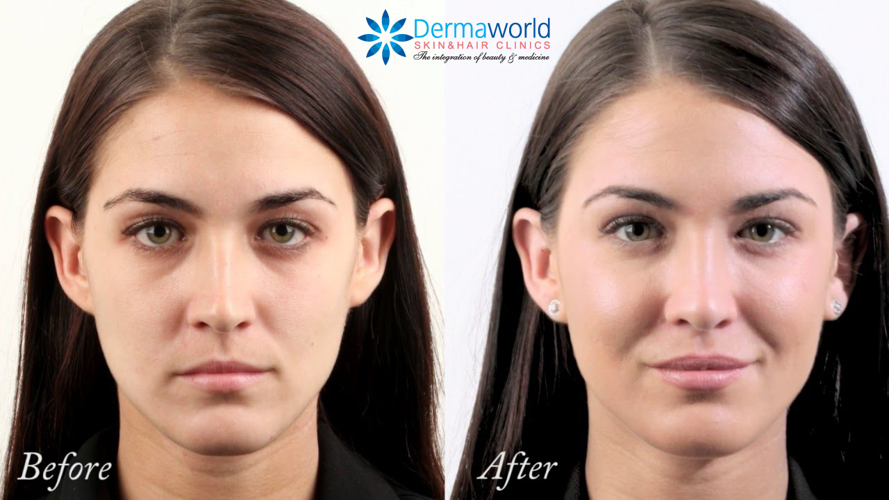 Dermal Fillers for Cheeks