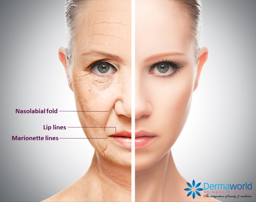 Skin fillers for wrinkles