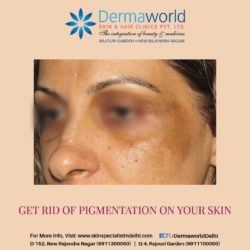 Best treatment for pigmentation in Delhi