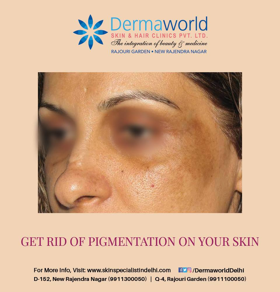 Best pigmentation treatment in Delhi