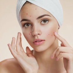 Best Doctor for Acne treatment in West Delhi