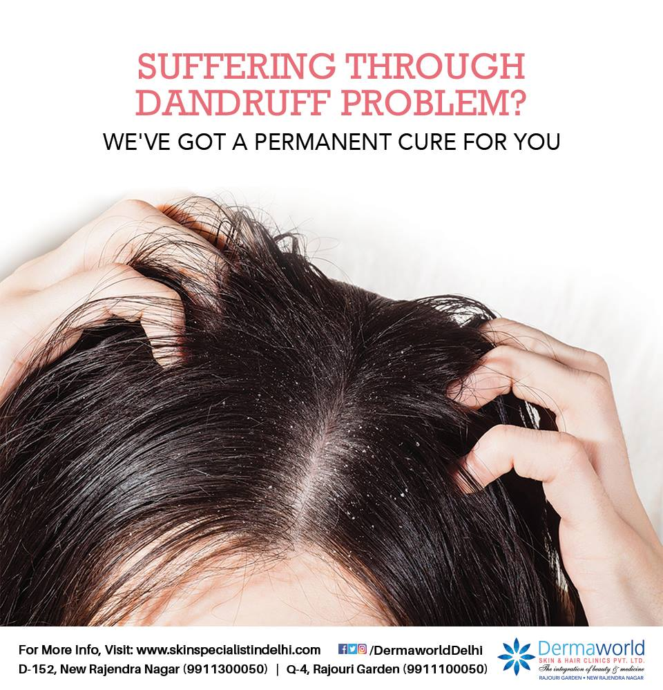 Best doctor for Hair Treatment in Delhi NCR