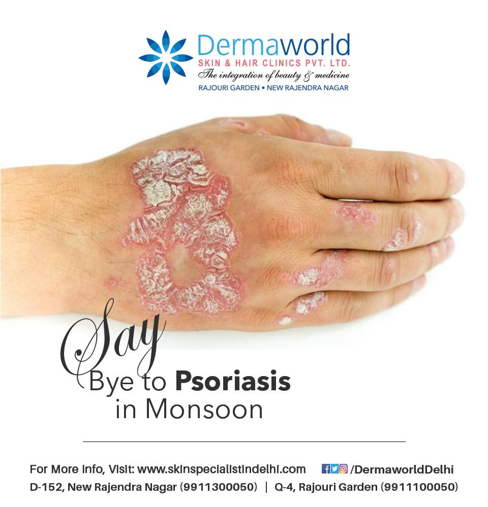 Best skin specialist for psoriasis treatment