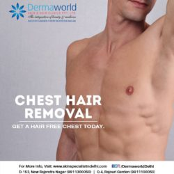 best laser hair removal treatment in New Delhi