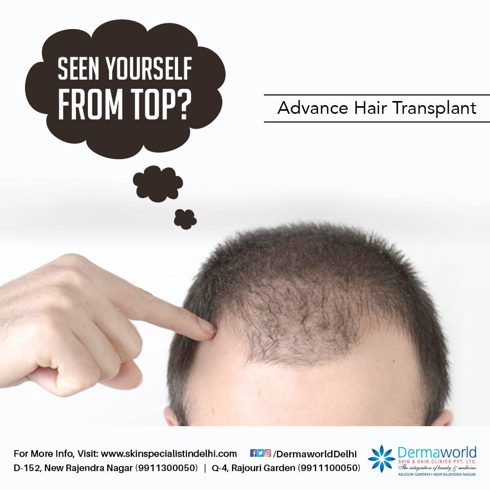 Best hair transplant treatment in Delhi