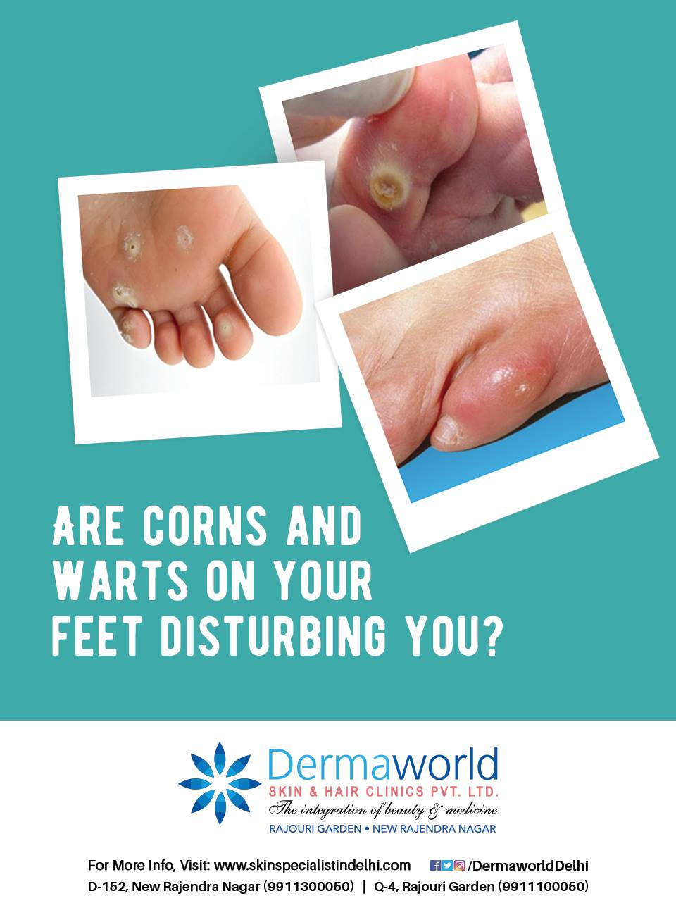 Best treatment for warts & corns
